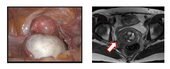 卵巣機能低下を最小限にとどめる卵巣子宮内膜症性嚢胞(左)手術、深部内膜症(右)