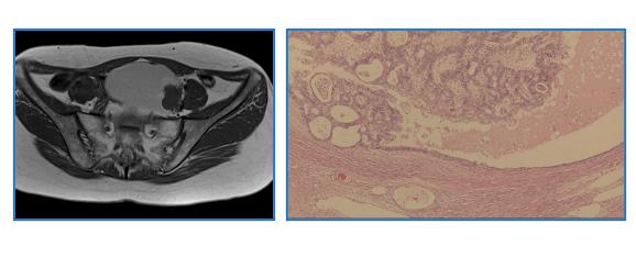 卵巣子宮内膜症性嚢胞